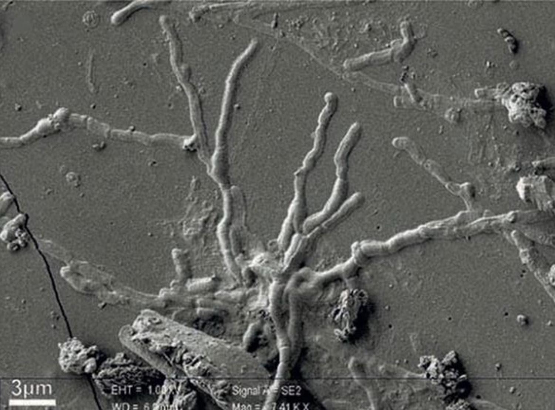 Tam 2 bin yıllık! Sağlam beyin hücresi keşfedildi