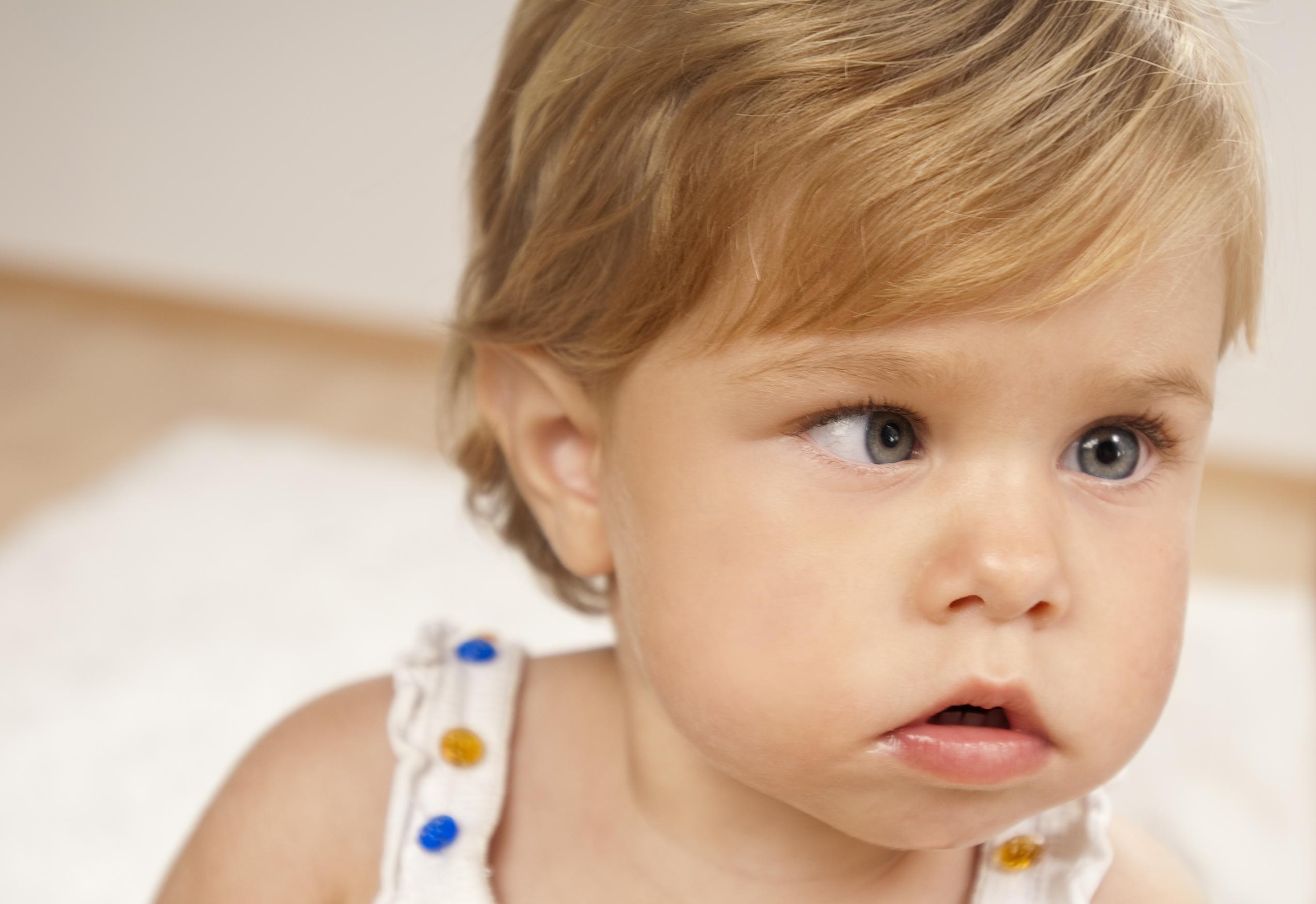 Şaşılık 6 yaşına kadar tedavi edilmeli