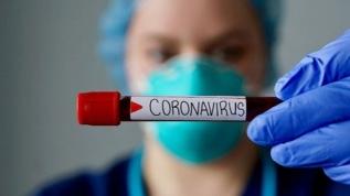 Koronavirüs aşısı bulundu mu? İşte Kovid-19 aşı ve tedavide son durum