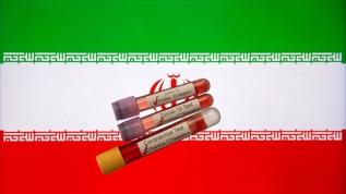 İran'da son 24 saatte 133 kişi koronavirüsten öldü