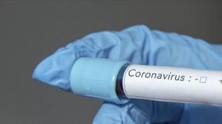 SP'li bir isim koronavirüsten hayatını kaybetti!